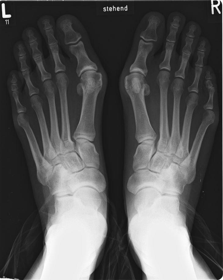 A középkor nevetségesen hosszú orrú cipői a bütykök megszaporodásához vezettek