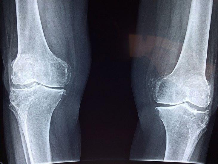 Meghatározták a csontok egészségéhez szükséges mozgás és alvás mennyiségét ausztrál kutatók