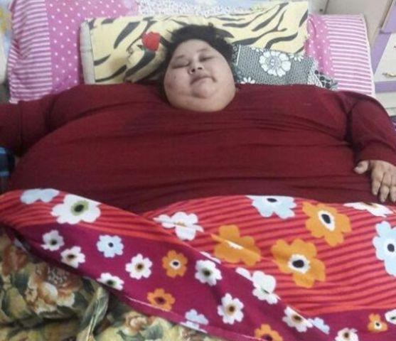 Több mint száz kilót fogyott 25 nap alatt a világ legkövérebb nője