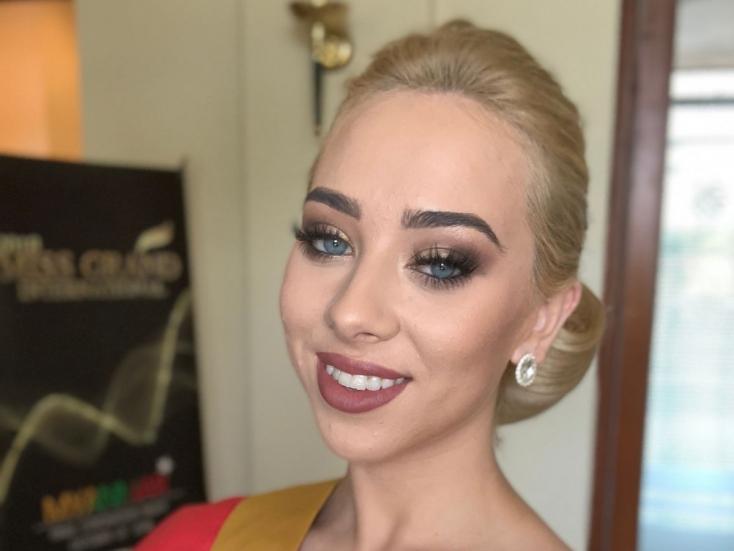 Mindenki ledöbbent, amikor a szépségkirálynő megmutatta igazi arcát – FOTÓK