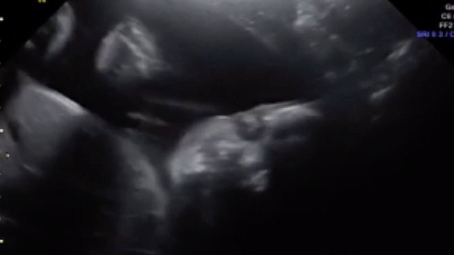 Integetéssel üdvözölte szüleit az édesanyja pocakjában lévő baba